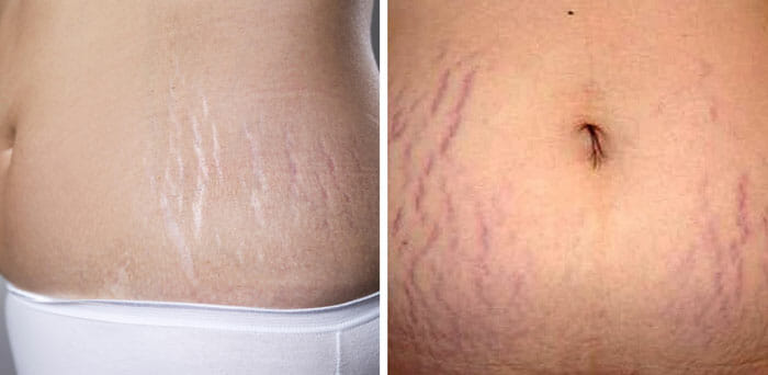 Red and White Stretch Marks