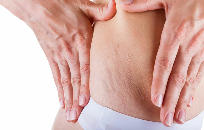 What are the Risk Factors for Stretch Marks?