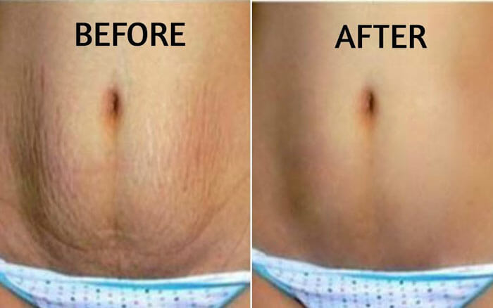 Will losing weight lessen stretch marks